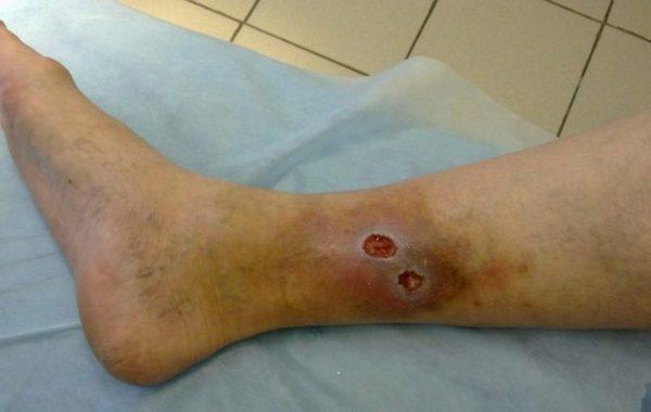 Профилактика при варикозном дерматите