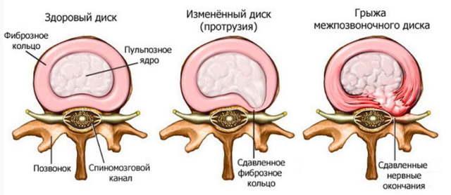 Причины появления прострела шеи