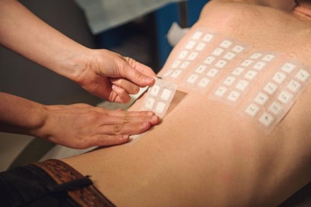 Иммуноглобулин е в норме при атопическом дерматите