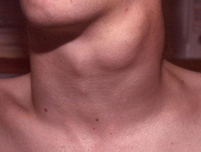 Опухла шея: проблемы щитовидной железы