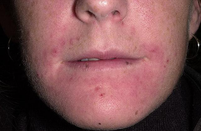 Атопический дерматит и золотистый стафилококк у ребенка