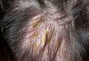 Чем полоскать голову при себорейном дерматите