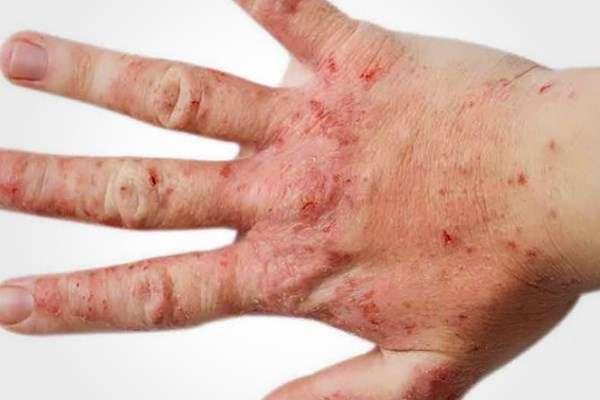 Передается ли аллергический дерматит от человека к человеку
